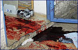 The aftermath at the Mercaz Harav Yeshiva Massacre