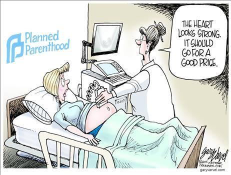 Planned Parenthood sonogram