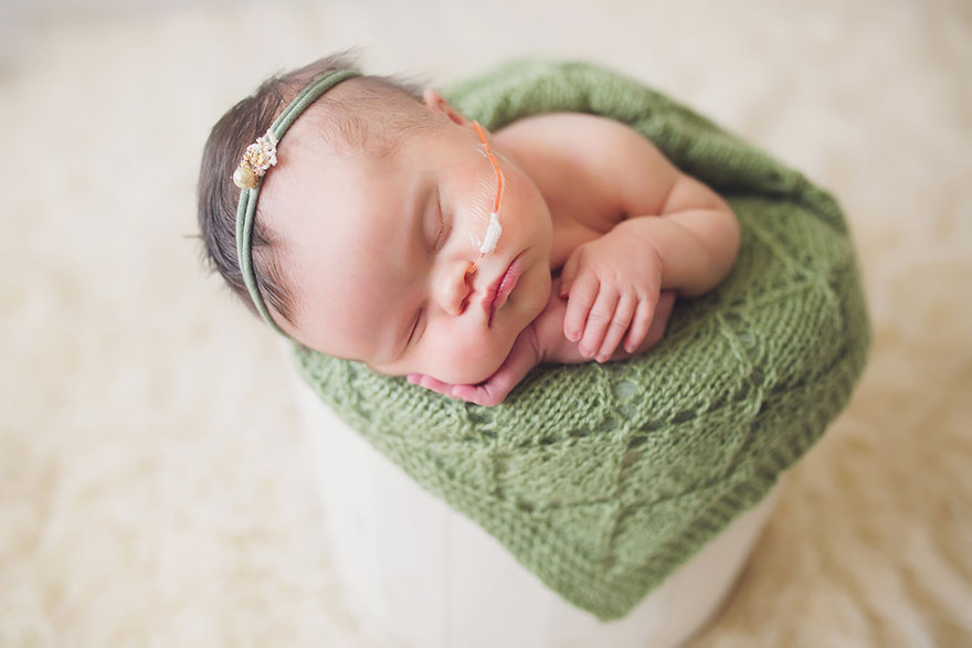 fotos-familiares-bebe-tumor-cerebral-abigail-jones (7)