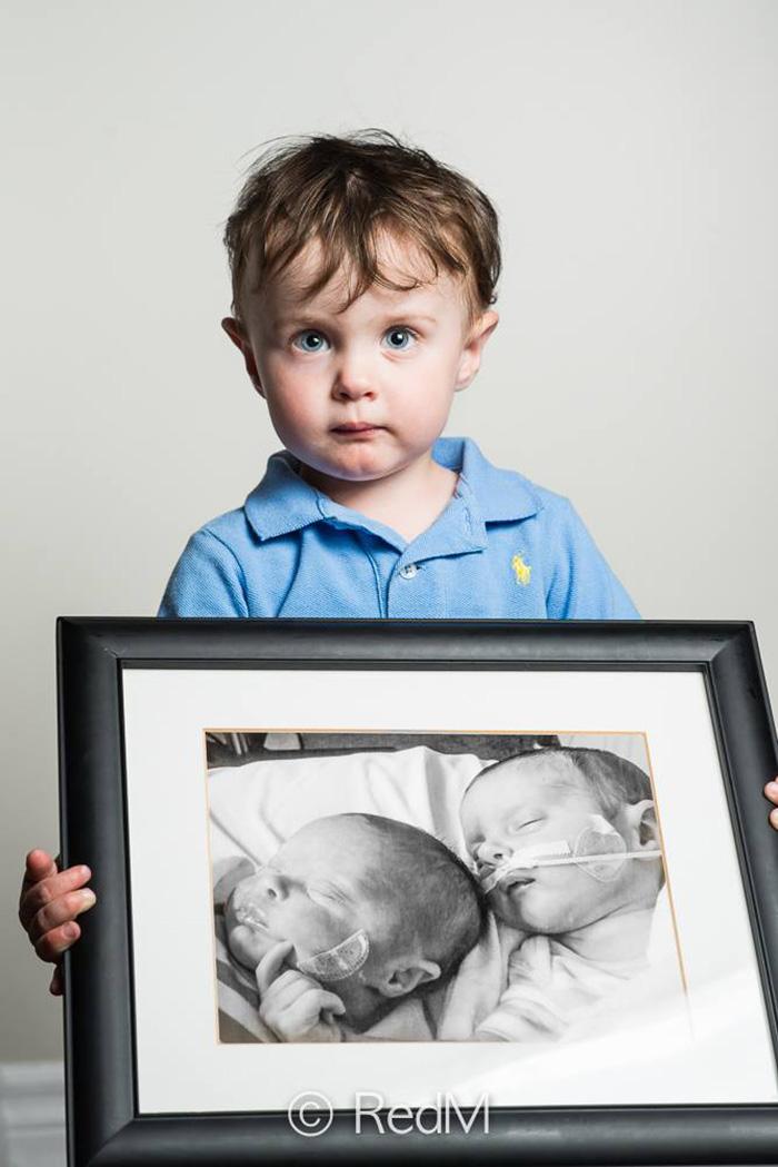 retratos-bebes-prematuros-les-premas-red-methot (12)