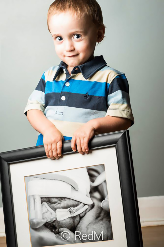 retratos-bebes-prematuros-les-premas-red-methot (4)