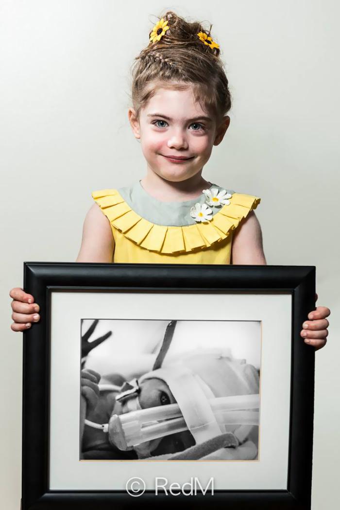 retratos-bebes-prematuros-les-premas-red-methot (9)