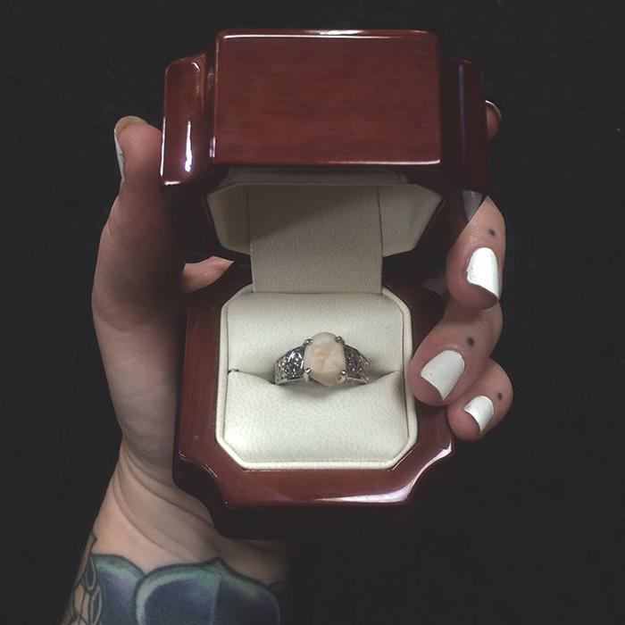 anillo-compromiso-muela-juicio-carlee-leifkes-lucas-unger (7)