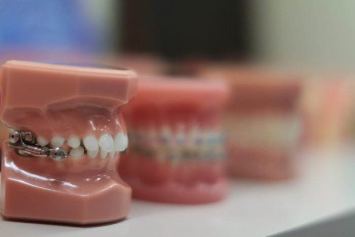 Orthodontic Appliances Timonium MD Palatal Expander