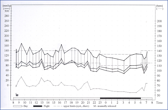 Dr Brian Gould, Cardiac Consultant at Blackheath and Chelsfield - how to graph blood pressure over time