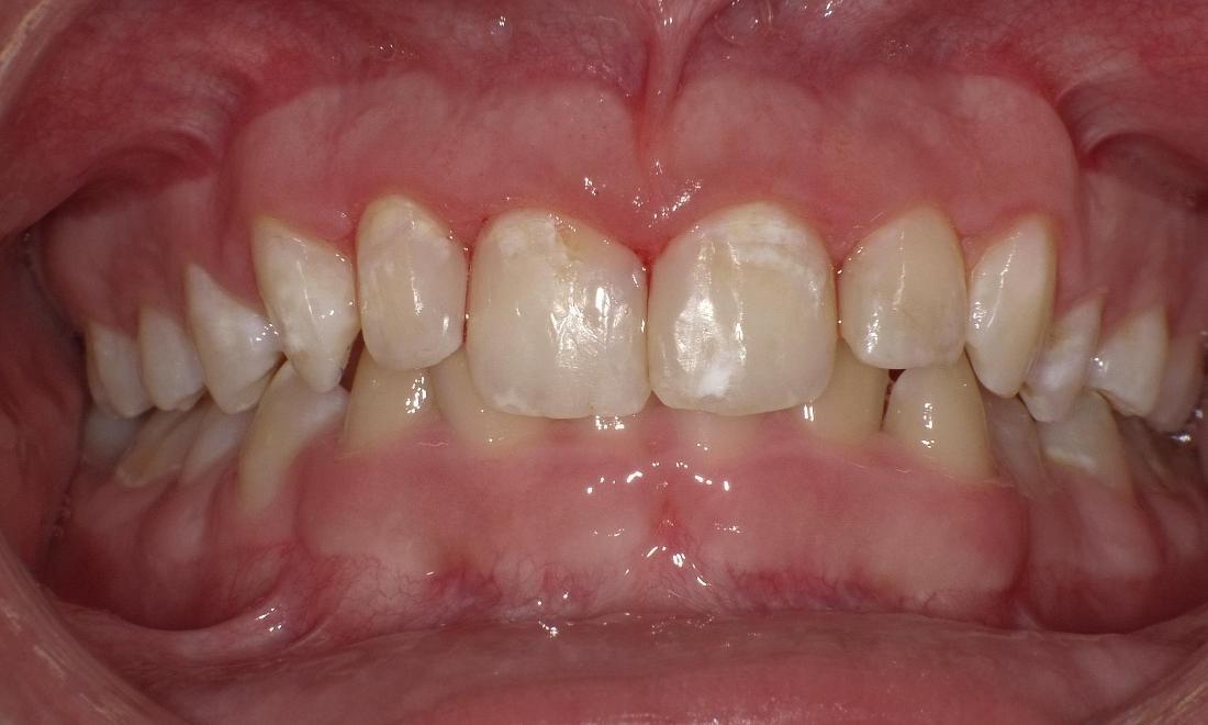Bethlehem Town Family Dental\u0027s Smile Gallery Composite Restoration