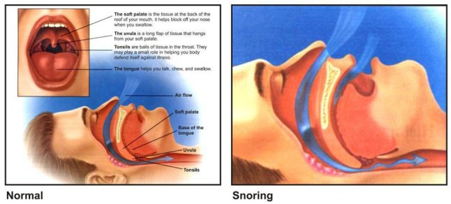 How Does Snoring Occur