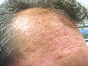 Head Pimple 02