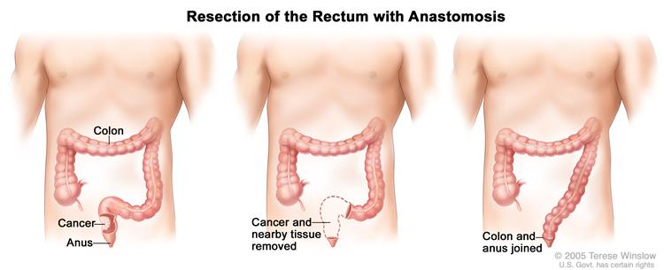 Definition of coloanal anastomosis - NCI Dictionary of Cancer Terms