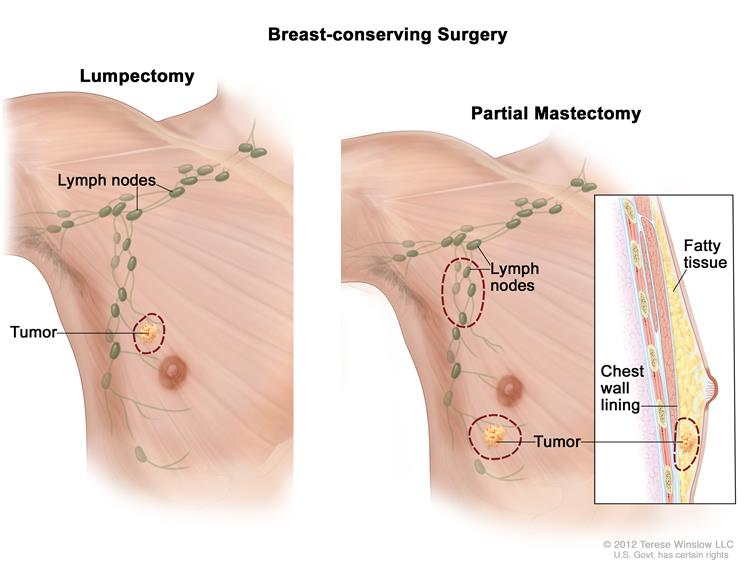 Breast Care Surgery - Male Breast Cancer