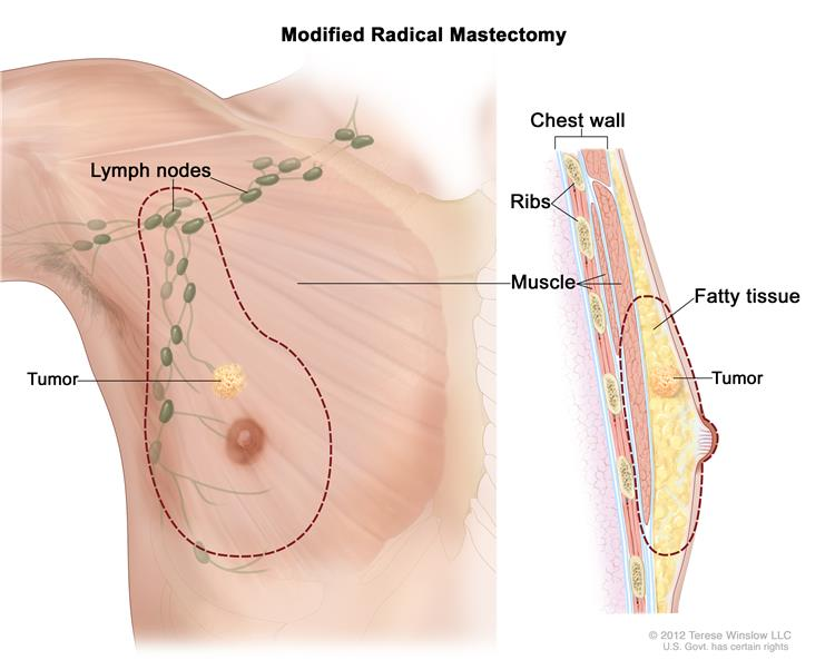 General Surgery - Male Breast Cancer