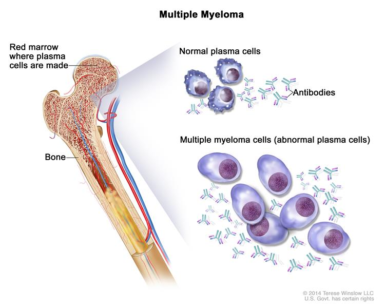 Plasma Cell Neoplasms (Including Multiple Myeloma) Treatment (PDQ