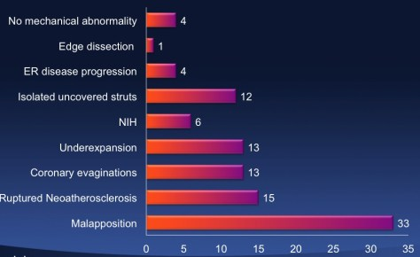 desthrombosis6