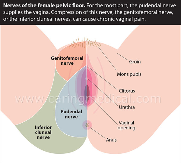 Prolotherapy Treatments for Groin Pain in Women \u2013 Caring Medical