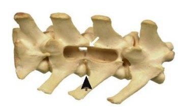 pijnstillers rug