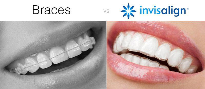 What are Invisalign Pros & Cons?