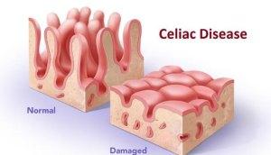 Celiac vs Normal