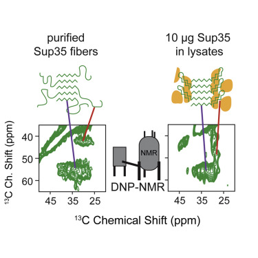 Sensitivity-Enhanced NMR Reveals Alterations in Protein Structure by