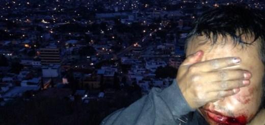 20141214-Represion-a-Normalistas-en-Chilpancingo