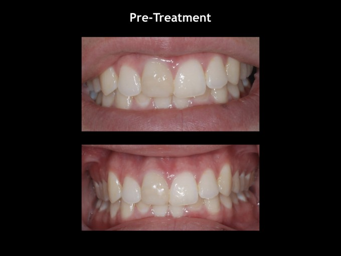 CEREC Doctors - Blog
