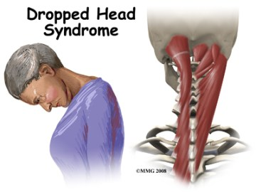 Dropped Head Syndrome