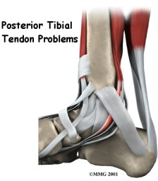 posterior-tibial-tendon