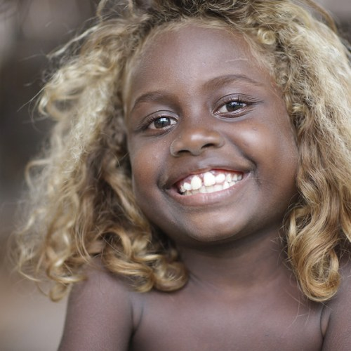 An Untold Secret: Why The Melanesians Of Solomon Islands Are The World's Only Black Blondes