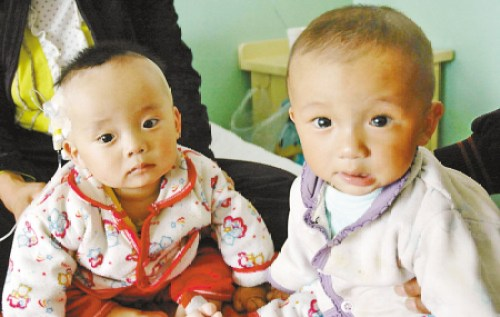 Chinese babies with kidney stones due to Sanlu brand milk powder contaminated with melamine.