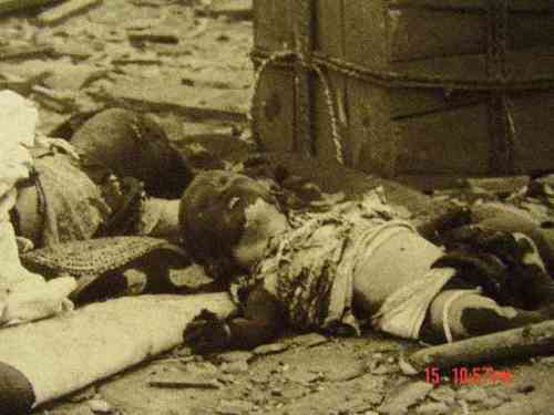 japanese-atomic-bomb-victims-16