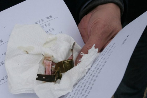 A hospital bracelet, one of many still attached to the legs of many of the dead babies found in the Guangfu River.
