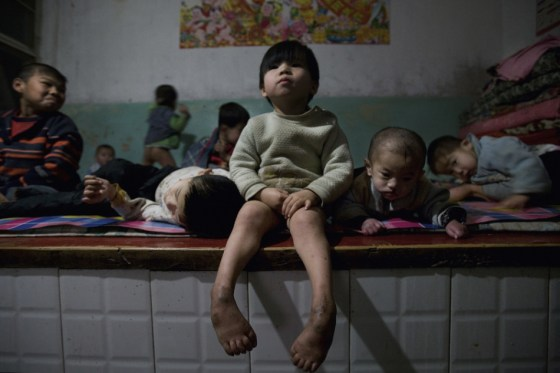 A little girl with a tumor on her back sits on the edge of a bed unable to play with the other kids.