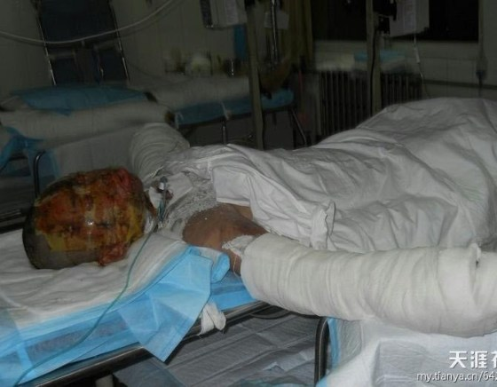 Zhou Yan, a young girl is horribly burned and disfigured after rejecting the advances of a boy.