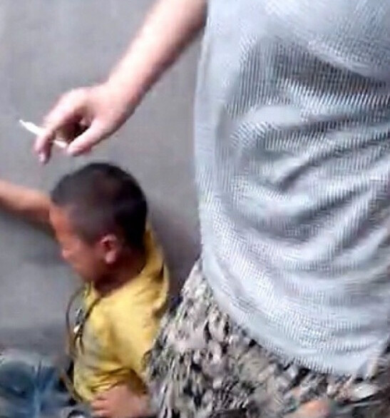Boy_Cornered_by_Teens_and_Beaten,_Burned_with_Cigar