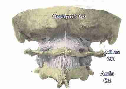 Atlanto occipital joint is a common cause of headaches