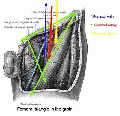 Femoral Artery stent followed by pain in back and leg - femoral triangle