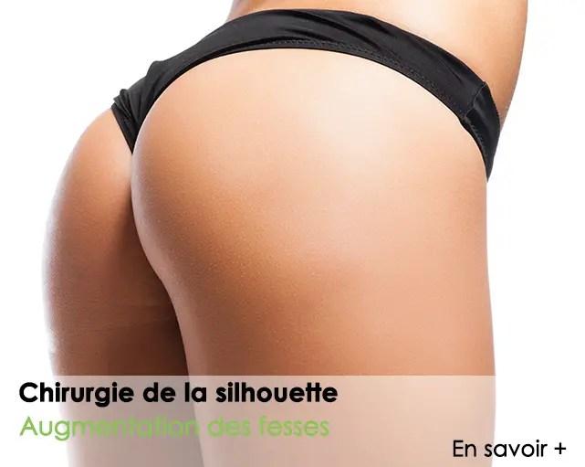 chirurgie-de-la-silhouette-augmentation-des-fesses-Nice