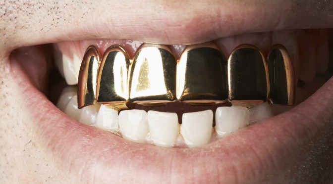 Man with gold front teeth, close-up of mouth