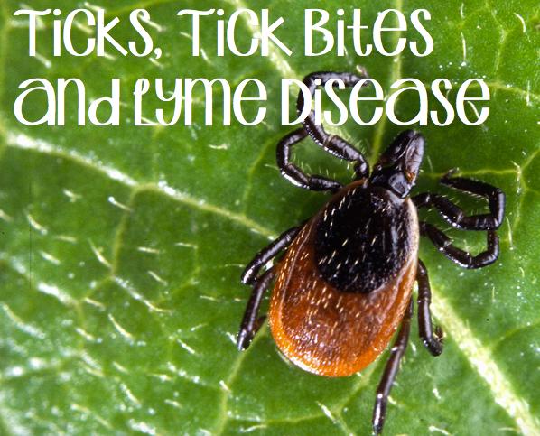 Ticks, Tick Bites and Lyme Disease