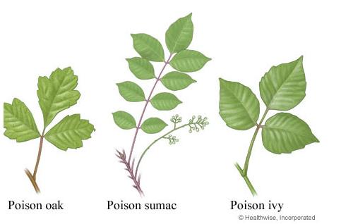 Poison Oak, Ivy and Sumac