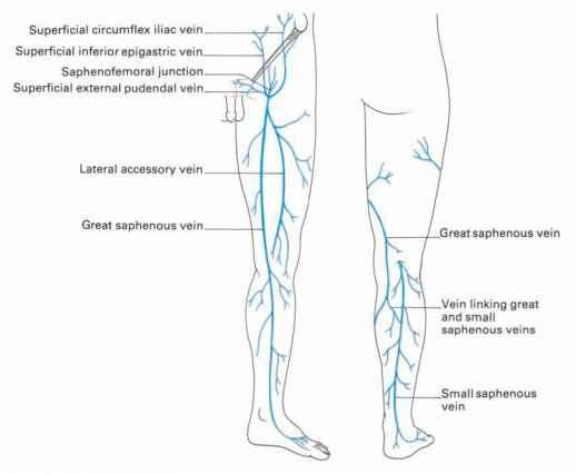 The veins of the lower limb - Clinical Features - Click to Cure Cancer
