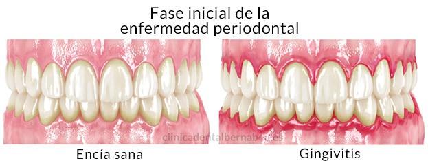Periodontitis Vs Gingivitis, Periodoncia - gingivitis y