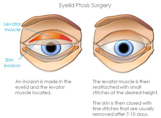 Ptosis surgery Harley Street Clinica London - ptosis surgery