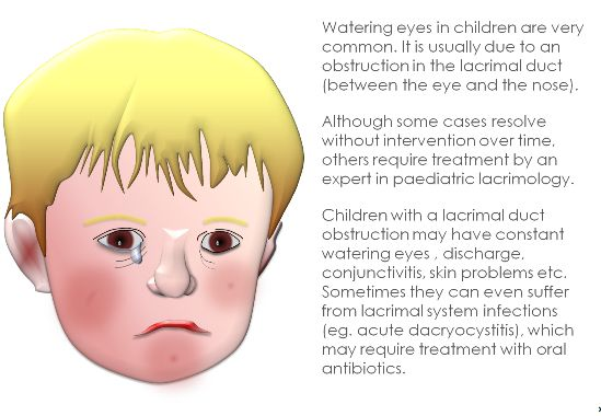 Sufferers Can Therefore Present With Watering Eyes During The First Days Of Life Which Cause Chronic Conjunctival Infection Mucous Discharge