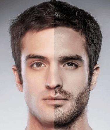 Depilación barba