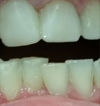 Internal Bleaching - Case 2 - Clock Tower Dental