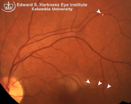 Hollenhorst Plaques Columbia Ophthalmology