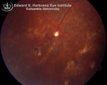 Presumed Ocular Histoplasmosis Syndrome (POHS) Columbia Ophthalmology
