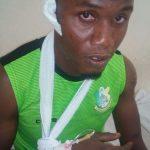 Gambo To Undergo Head Injury Tests At Top Kano Hospital