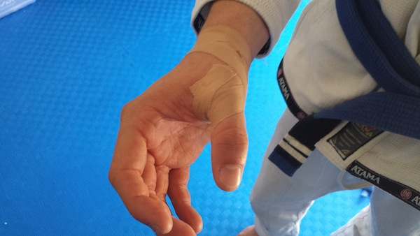 Training BJJ and Injuries: What To Do If You Get Hurt