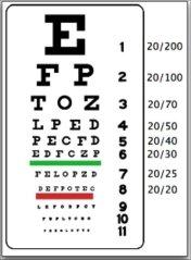 Comment Améliorer votre vue naturellement sans lunettes